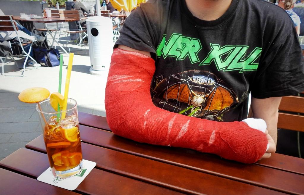 Brechen sich ohne arm wie schmerzen kann den man Armbruch (gebrochener