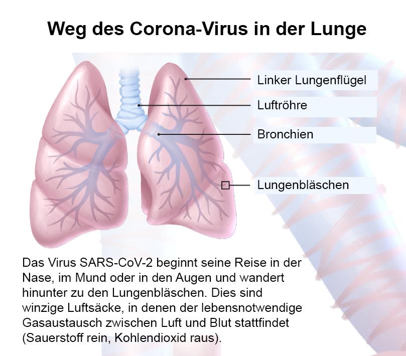 COVID-19 Was macht Krankheit unserer Lunge